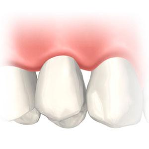 インプラント体(人工歯根)