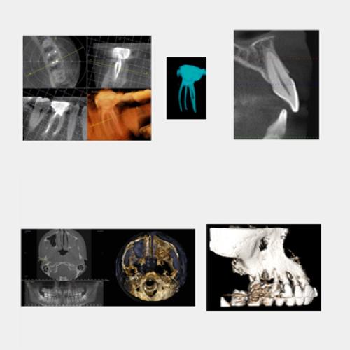 歯科用CTについて
